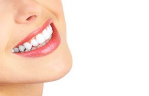 White teeth Napa, CA
