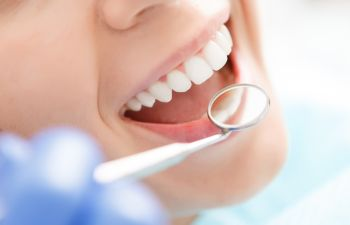 Top Reasons to Choose Professional Teeth Whitening Napa, CA