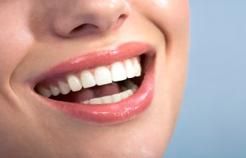 5 Reasons to Choose Cosmetic Veneers Napa, CA